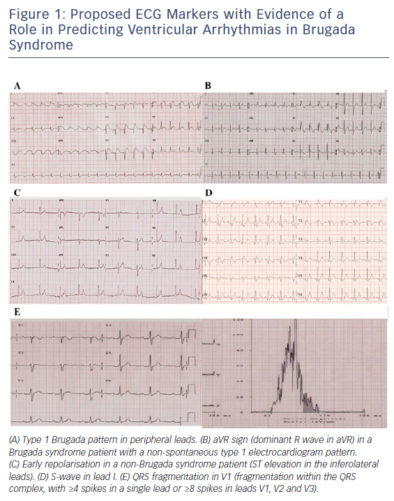 Figure 1: Proposed ECG Markers with Evidence of a Role in Predicting Ventricular Arrhythmias in Brugada Syndrome
