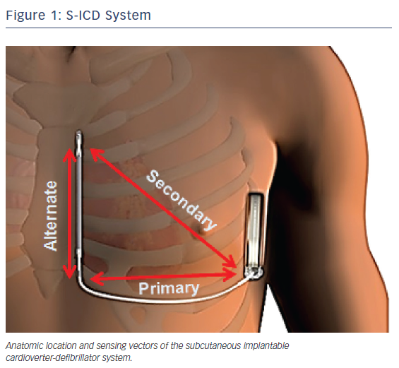 Figure 1: S-ICD System