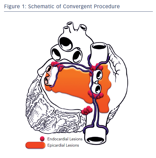 Figure 1: Schematic of Convergent Procedure