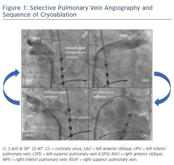 Figure 1: Selective Pulmonary Vein Angiography and Sequence of Cryoablation