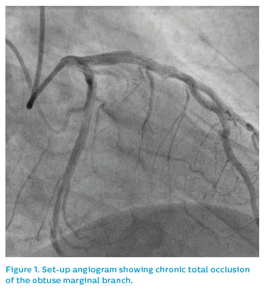 Figure 1. Set-up angiogram showing chronic total occlusion of the obtuse marginal branch