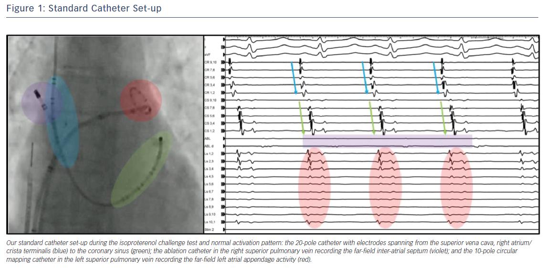 Standard Catheter Set-up