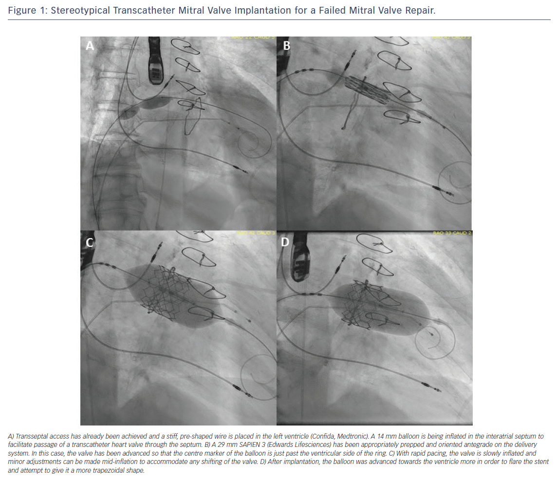 Figure 1: Stereotypical Transcatheter Mitral Valve Implantation for a Failed Mitral Valve Repair