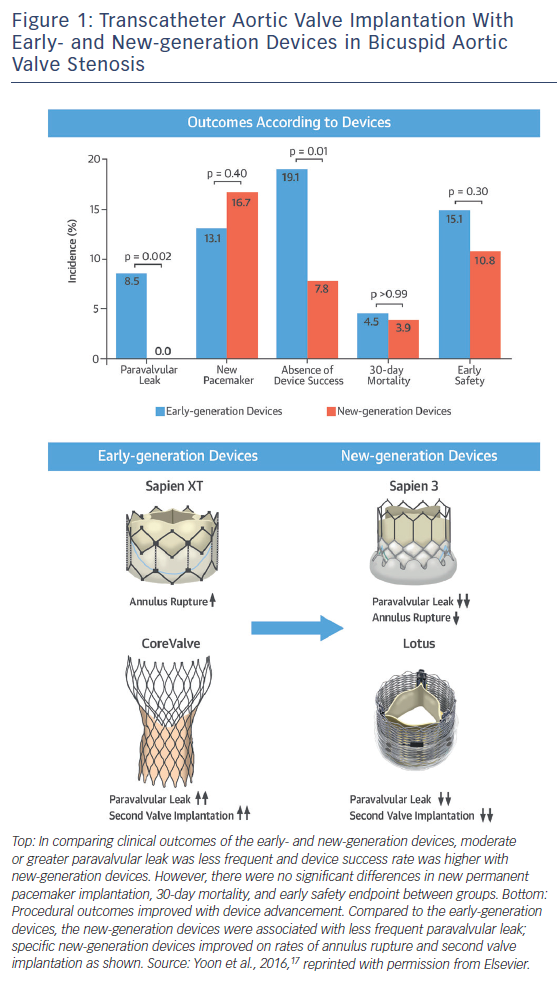 Figure 1: Transcatheter Aortic Valve Implantation With Early- and New-generation Devices in Bicuspid Aortic Valve Stenosis