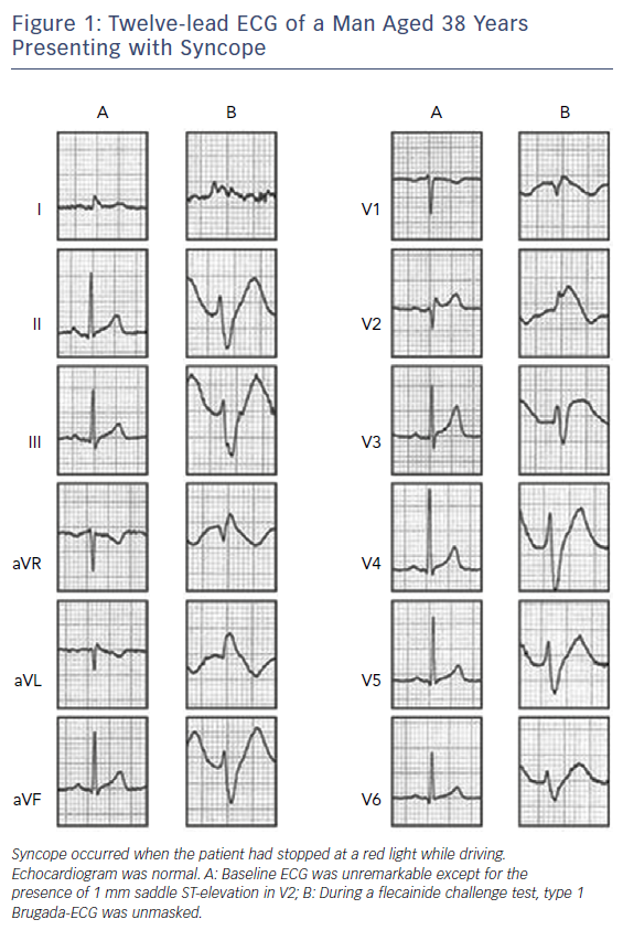 Figure 1: Twelve-lead ECG of a Man Aged 38 Years Presenting with Syncope