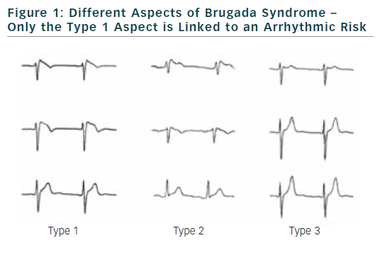 Figure 1: Different Aspects of Brugada Syndrome – Only the Type 1 Aspect is Linked to an Arrhythmic Risk
