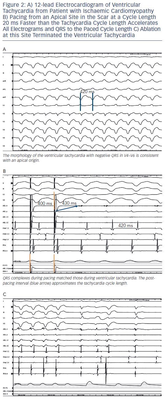 Figure 2: 12-lead Electrocardiogram of Ventricular