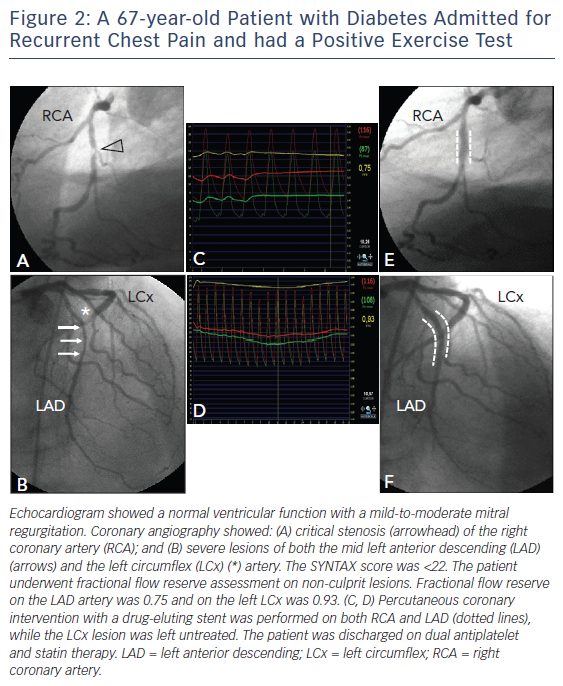 Figure 2: A 67-year-old Patient with Diabetes Admitted for Recurrent Chest Pain and had a Positive Exercise Test