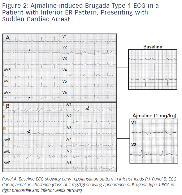 Figure 2: Ajmaline-induced Brugada Type 1 ECG in a Patient with Inferior ER Pattern, Presenting with Sudden Cardiac Arrest