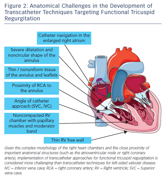 Figure 2: Anatomical Challenges in the Development of Transcatheter Techniques Targeting Functional Tricuspid Regurgitation
