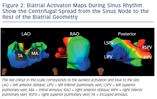 Figure 2: Biatrial Activaton Maps During Sinus RhythmShow the Centrifugal Spread from the Sinus Node to theRest of the Biatrial Geometry
