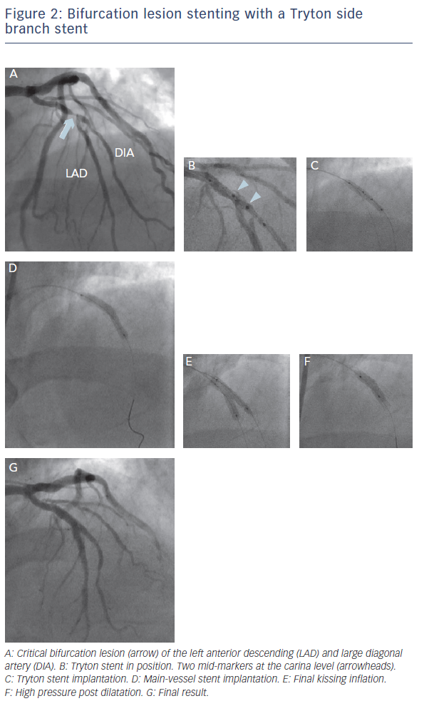 Figure 2: Bifurcation Lesion Stenting With A Tryton Side Branch Stent