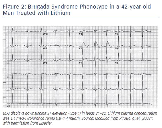 Brugada Syndrome Phenotype