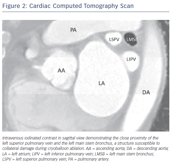 Figure 2: Cardiac Computed Tomography Scan
