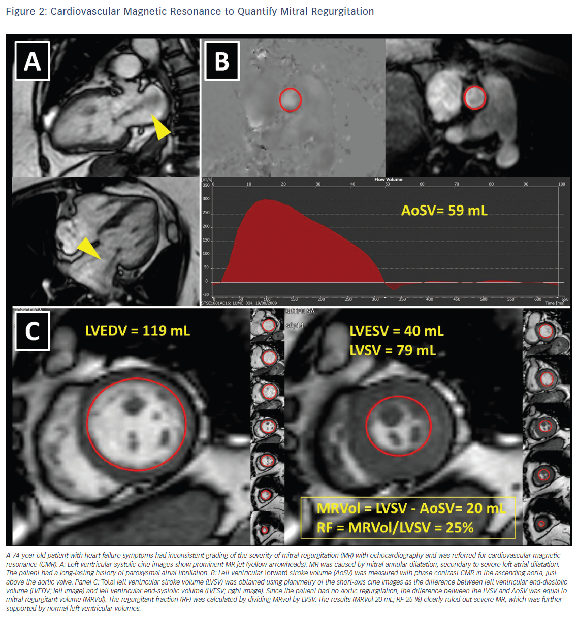 Figure 2: Cardiovascular Magnetic Resonance to Quantify Mitral Regurgitation