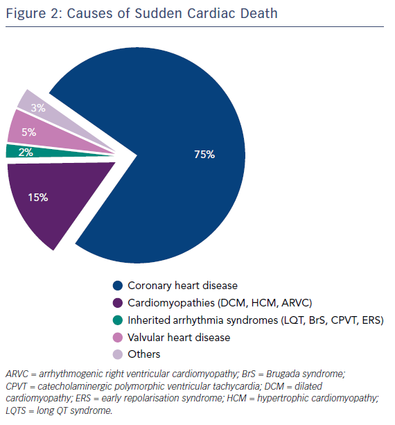 Figure 2: Causes of Sudden Cardiac Death