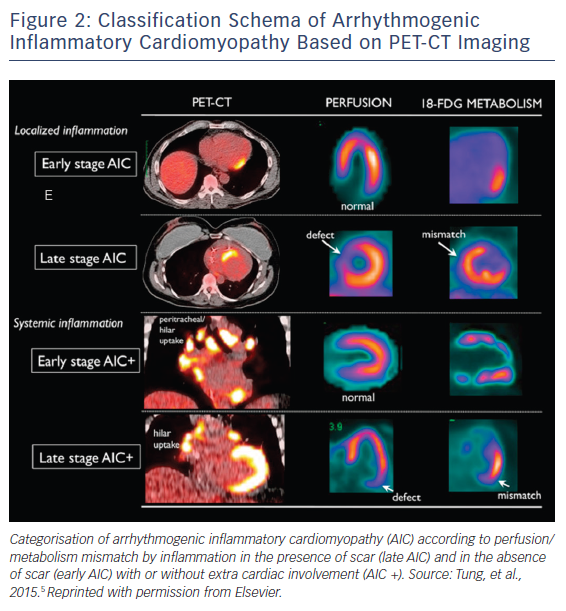 Figure 2: Classification Schema of Arrhythmogenic Inflammatory Cardiomyopathy Based on PET-CT Imaging