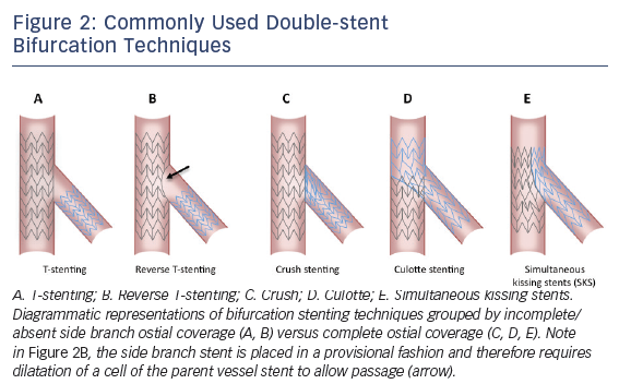 Figure 2: Commonly Used Double-stent Bifurcation Techniques