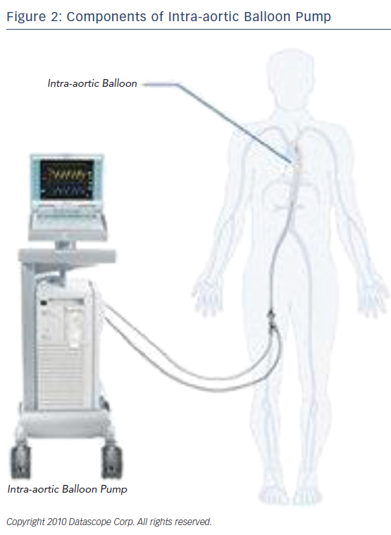 Figure 2: Components of Intra-aortic Balloon Pump