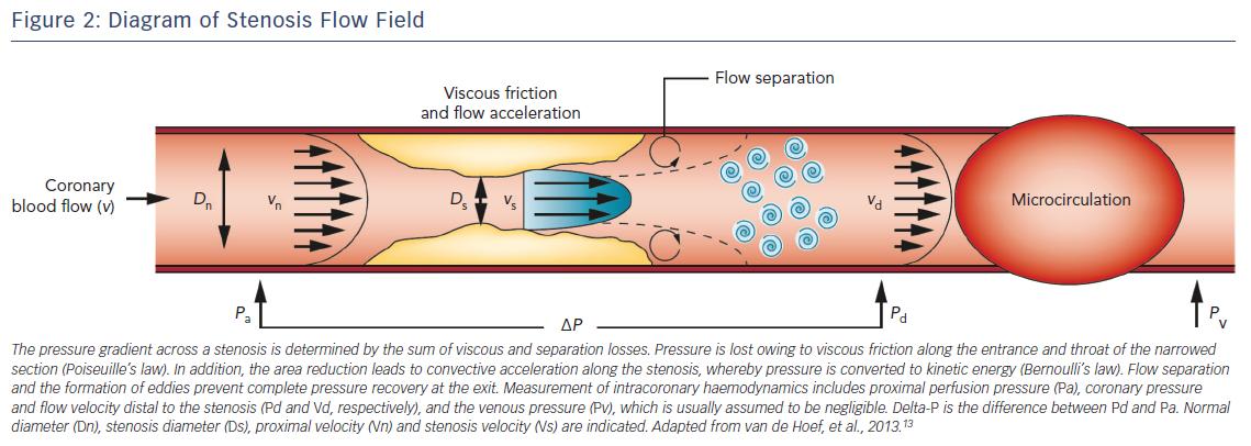 Figure 2: Diagram of Stenosis Flow Field