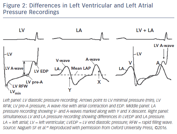 Figure 2: Differences in Left Ventricular and Left Atrial Pressure Recordings