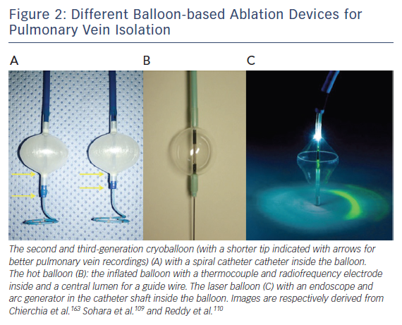 Different Balloon-based Ablation Devices