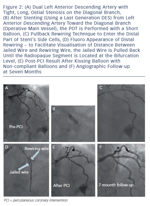 (A)Dual left anterior(B)After Stenting(C)Pullback (D)Fluoro Appearance (E)Post-PCI(F) 7 Month follow-up