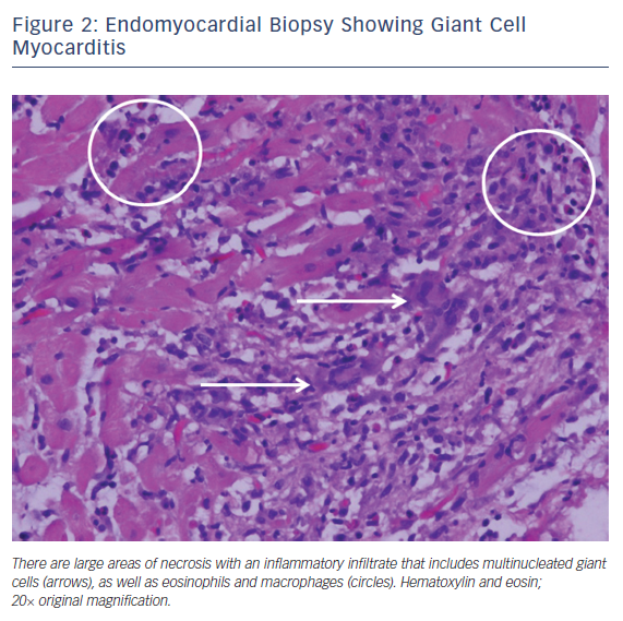Figure 2: Endomyocardial Biopsy Showing Giant Cell Myocarditis