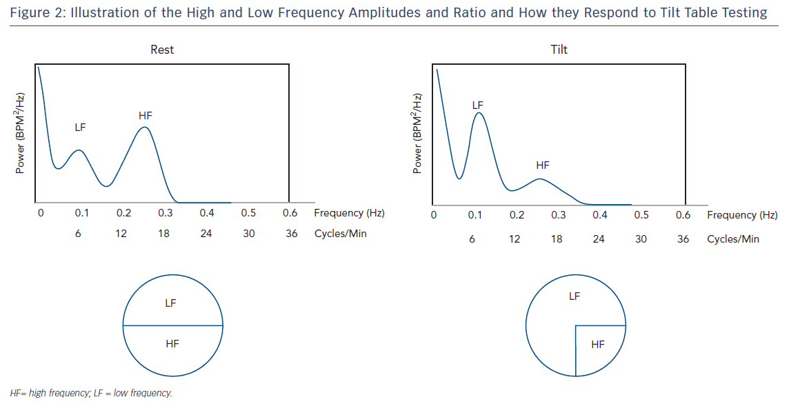 Illustration of the high & Low Frequency Amplitudes and Ration