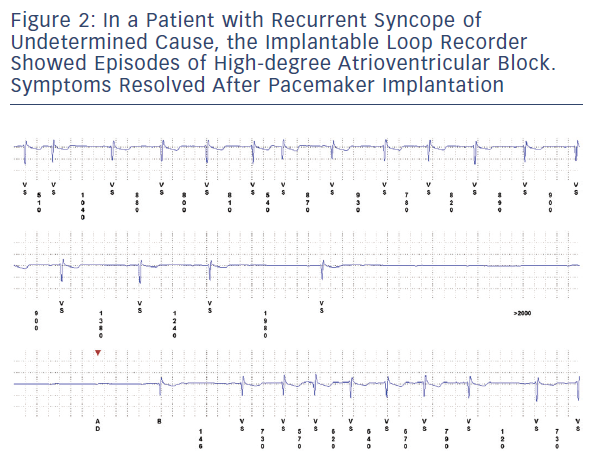 Figure 2: In A Patient With Recurrent Syncope Of Undetermined Cause, The Implantable Loop Recorder Showed Episodes Of High-Degree Atrioventricular Block. Symptoms Resolved After Pacemaker Implantation