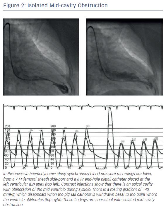 Isolated Mid-cavity Obstruction