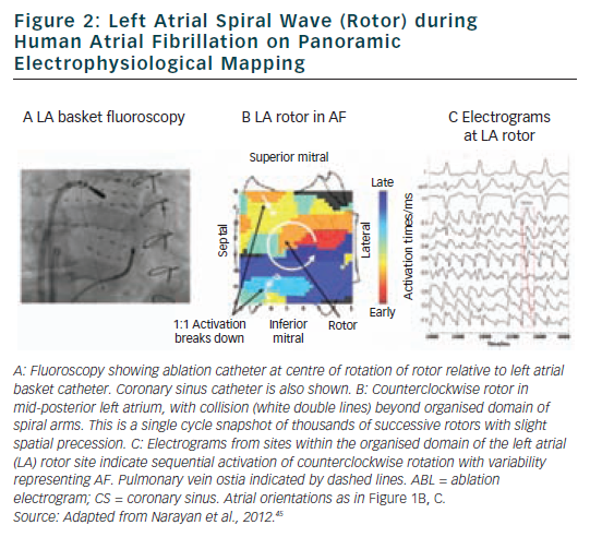 Figure 2: Left Atrial Spiral Wave (Rotor) during  Human Atrial Fibrillation on Panoramic Electrophysiological Mapping