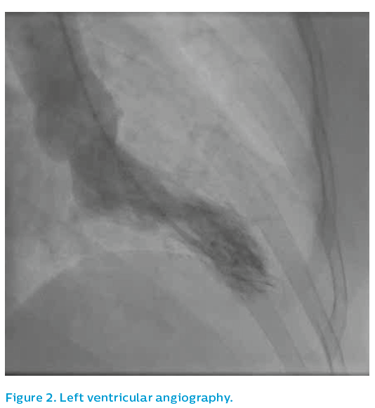 Figure 2. Left ventricular angiography