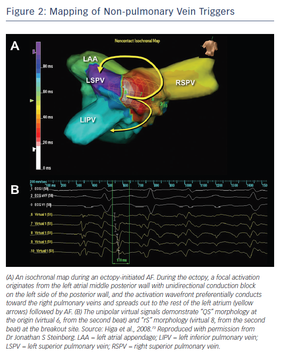 Mapping of Non-pulmonary Vein Triggers