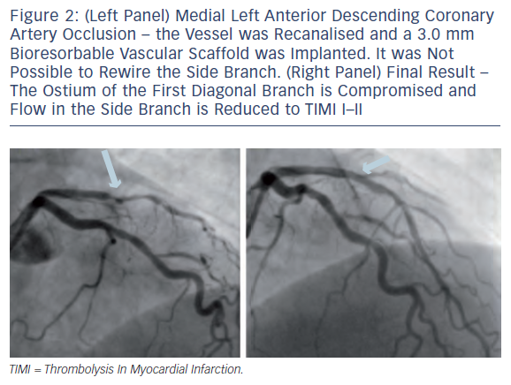 (Left) Medial Left Anterior Descending Coronary Artery Occlusion (Right) Final Result