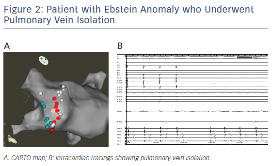 Figure 2: Patient with Ebstein Anomaly who Underwent Pulmonary Vein Isolation