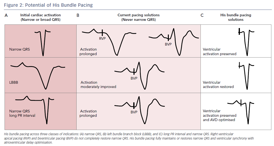 Figure 2: Potential of His Bundle Pacing