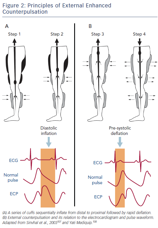 Figure 2: Principles of External Enhanced Counterpulsation