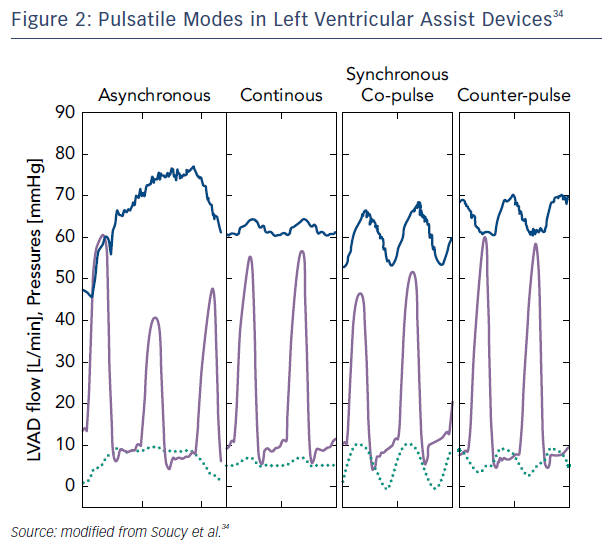 Figure 2: Pulsatile Modes in Left Ventricular Assist Devices