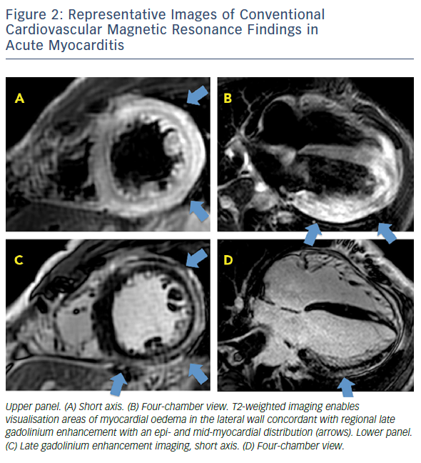 Figure 2: Representative Images Of Conventional Cardiovascular Magnetic Resonance Findings In Acute Myocarditis
