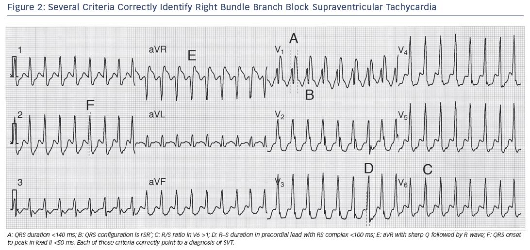 Figure 2: Several Criteria Correctly Identify Right Bundle Branch Block Supraventricular Tachycardia