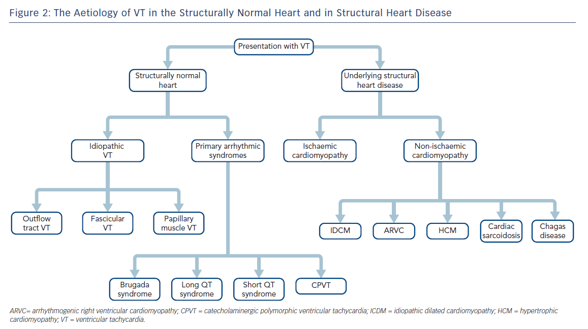 The Aetiology of VT in the Structurally Normal Heart and in Structural Heart Disease