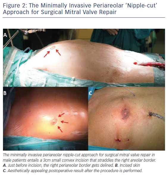 Figure 2: The Minimally Invasive Periareolar 'Nipple-cut' Approach for Surgical Mitral Valve Repair