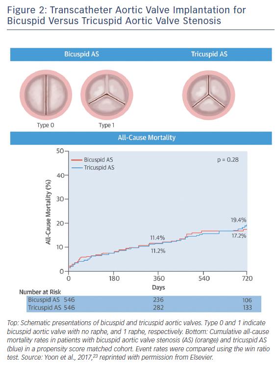 Figure 2: Transcatheter Aortic Valve Implantation for Bicuspid Versus Tricuspid Aortic Valve Stenosis