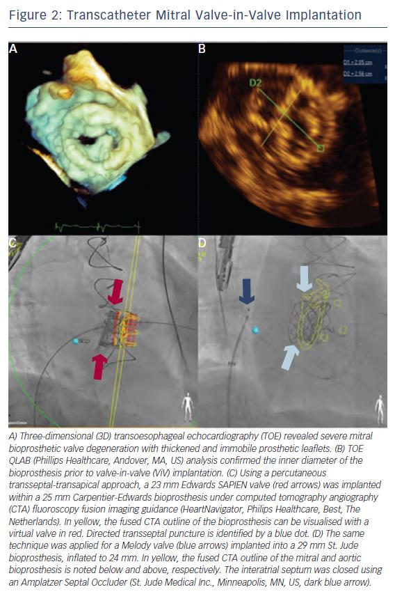 Figure 2: Transcatheter Mitral Valve-in-Valve Implantation