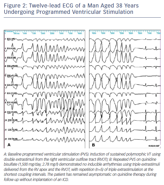 Figure 2: Twelve-lead ECG of a Man Aged 38 Years Undergoing Programmed Ventricular Stimulation