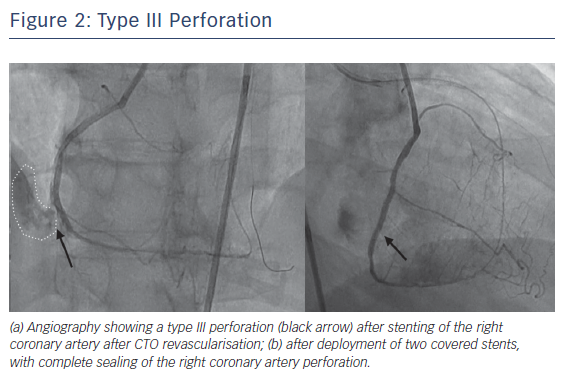 Figure 2: Type III Perforation