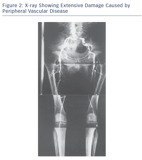 X-ray Showing Extensive Damage Caused by Peripheral Vascular Disease