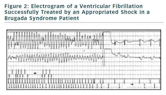 Figure 2: Electrogram of a Ventricular Fibrillation Successfully Treated by an Appropriated Shock in a Brugada Syndrome Patient