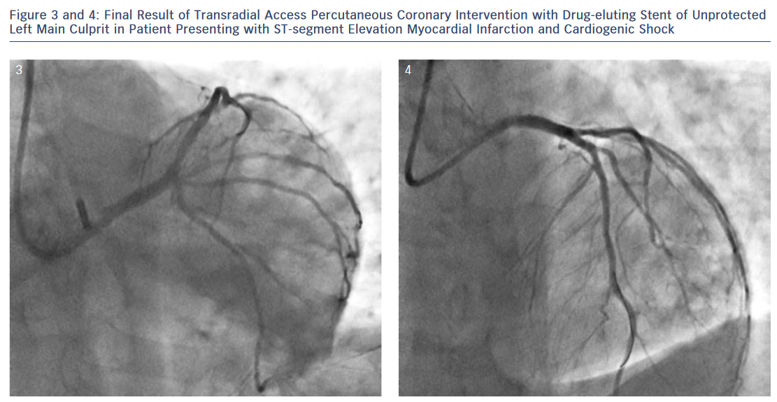 Final Result of Transradial Access Percutaneous Coronary Intervention